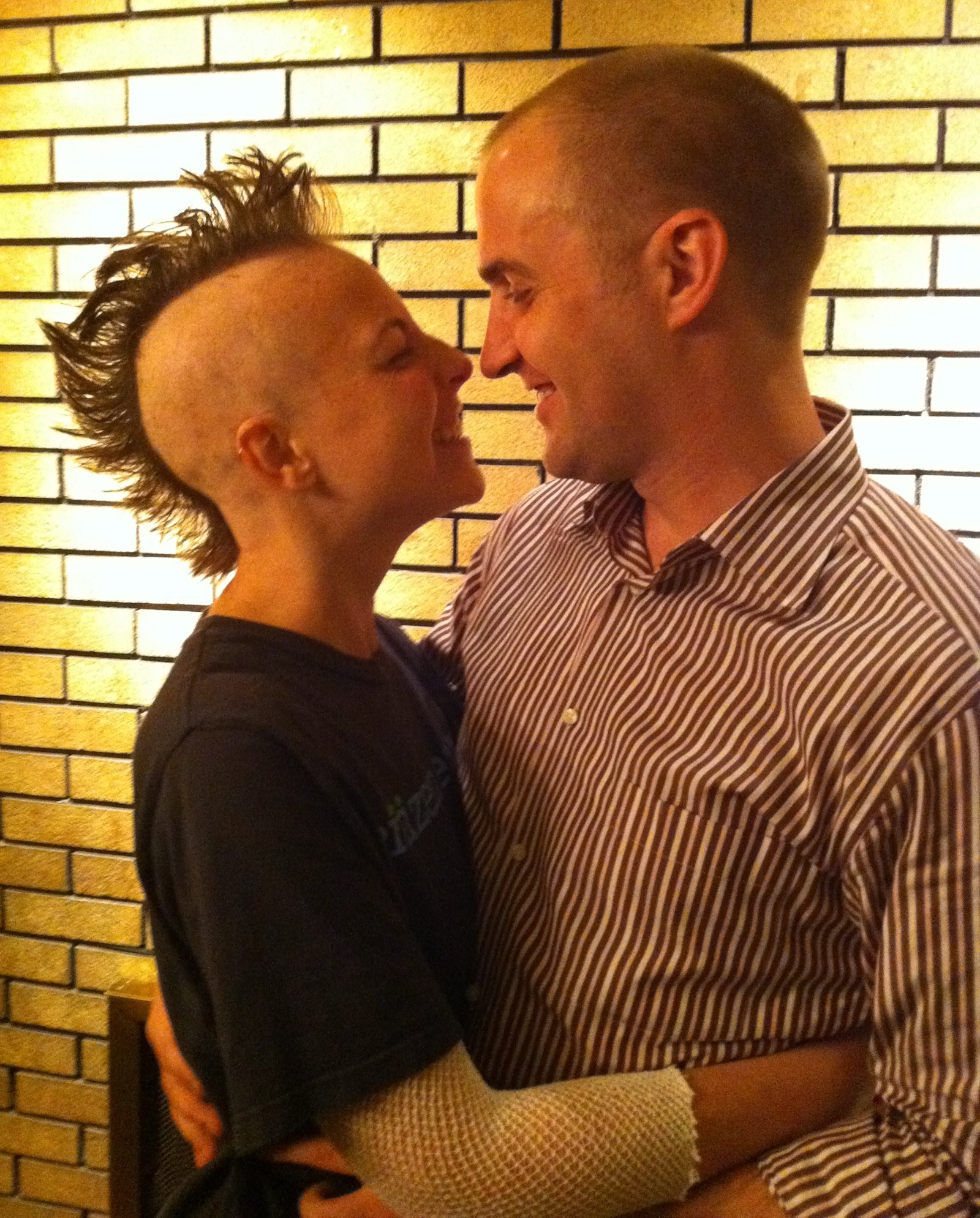 Becoming Bald